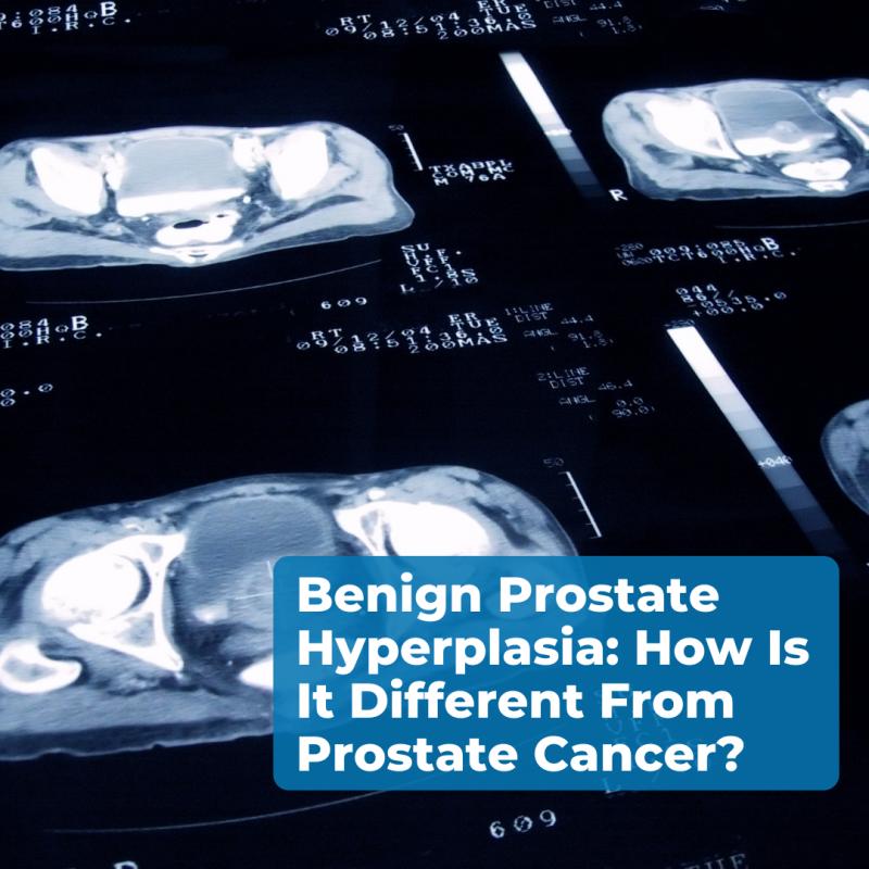 benign-prostate
